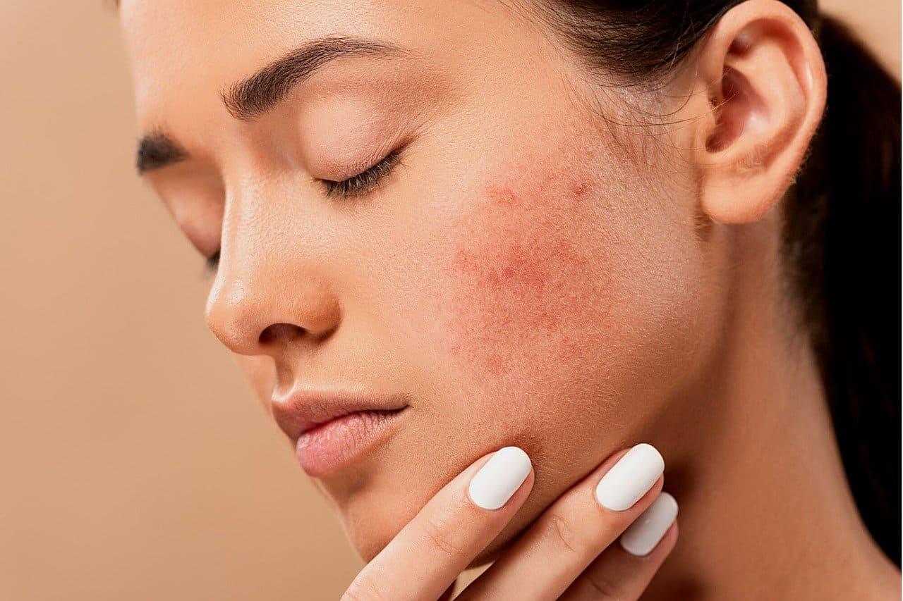 aceites naturales para eliminar el acné