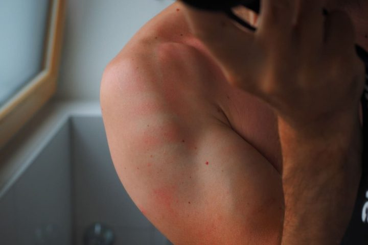 remedios caseros para las quemaduras solares